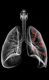 Imagen do câncer de pulmão