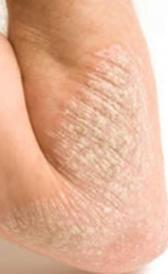 Imagen do eczema
