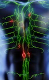Imagen do linfoma de Hodgkin