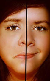 Imagen do transtorno bipolar