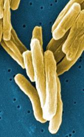 Imagen da tuberculose