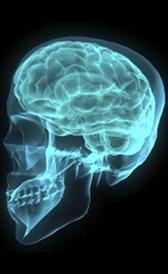 Imagen do tumor cerebral